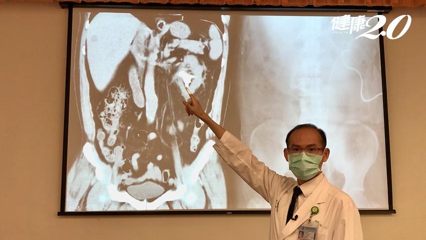憋尿憋出複雜鹿角狀腎結石 微創雙鏡新手術一次清除