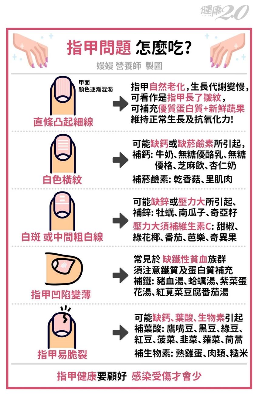 指甲易裂是缺鈣?5種「指甲異常」暗示你營養不良!營養師教你怎麼補