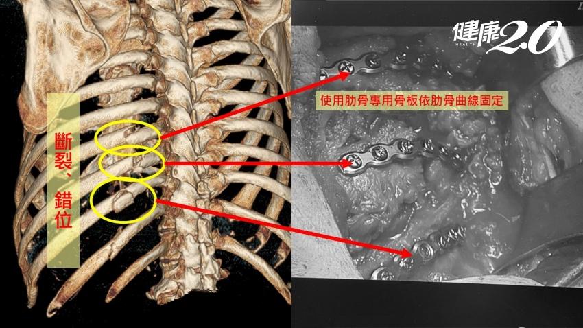 藍心湄也在這跌倒過,家裡「這地方」超危險 肋骨骨折專用骨板更快止痛、促癒合