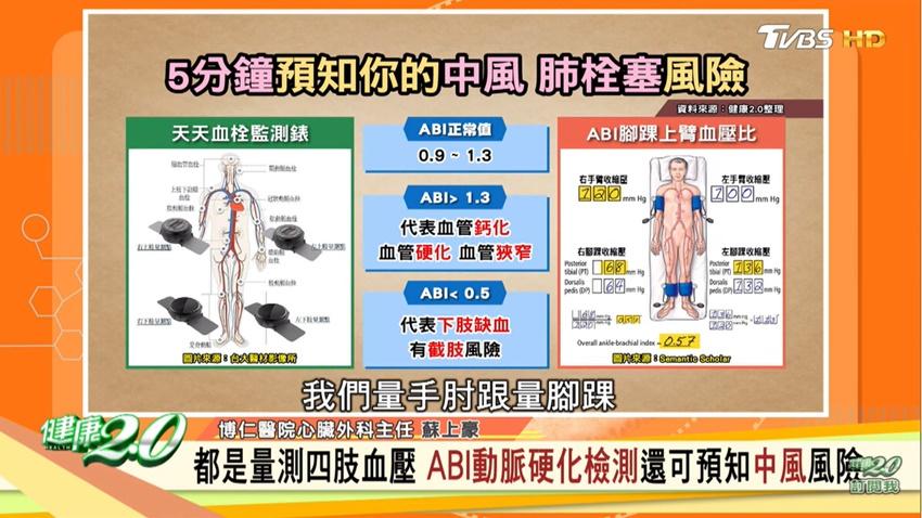 怕血栓先避開這3個行為 醫曝量測四肢血壓防中風
