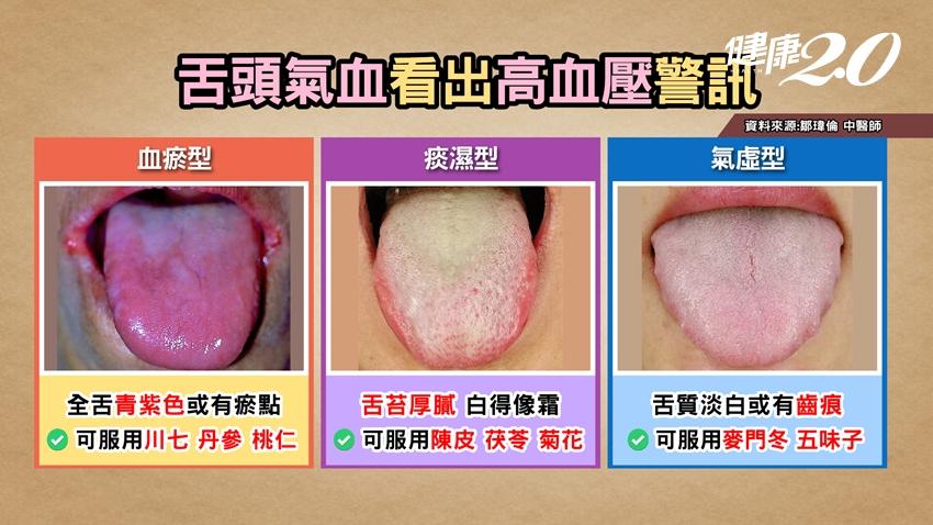 舌頭可看出高血壓警訊!中醫師3穴位快速降壓 生氣血壓飆這樣做