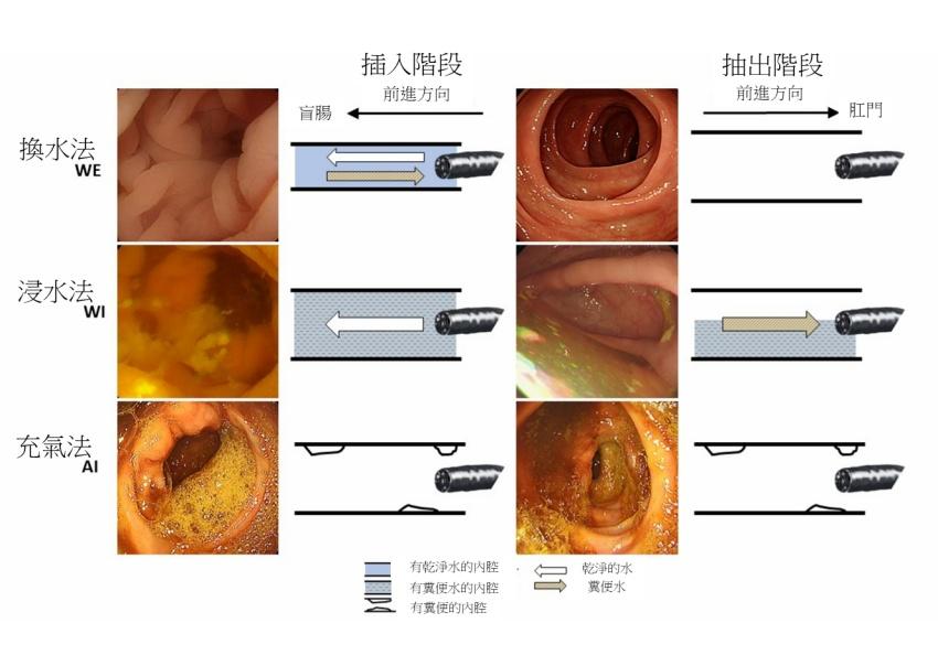 大腸鏡換水檢查取代充氣檢查 息肉發現率高16%、6成1受檢者都說「不會痛」