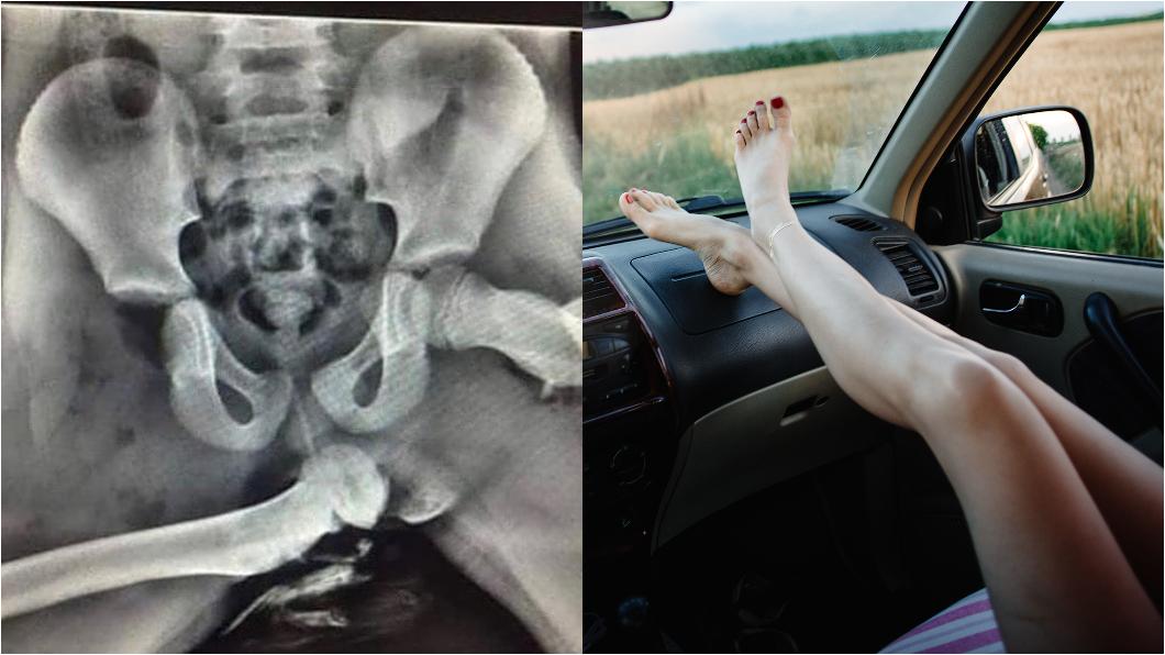 喜歡把腳翹上儀錶台嗎?X光照片告訴你千萬別這麼做!(圖片來源/  Instagram頻道 @med.index、達志影像Shutterstock) 腳翹儀錶台超舒服? X光照片告訴你可怕真相