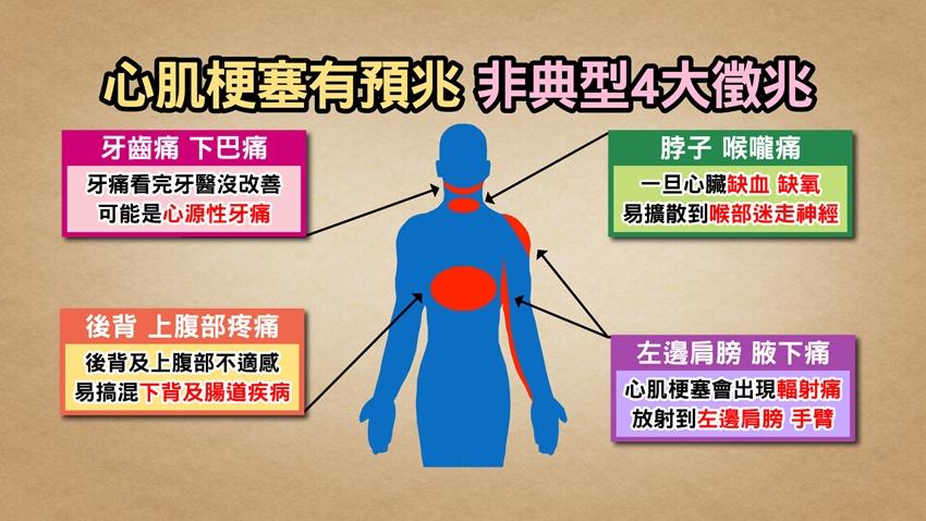 心肌梗塞不一定胸口痛,小心4個「意想不到」的部位!醫師教你黃金10秒自救