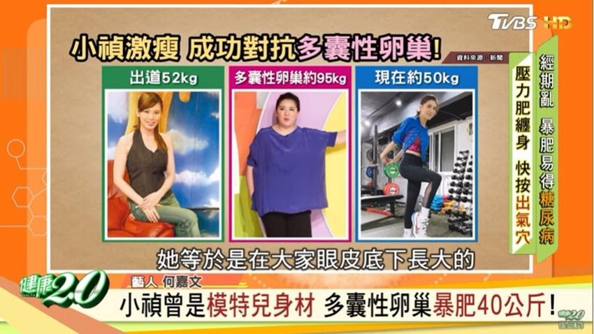 小禎飲食+運動狠甩40公斤!名醫吳明珠分享3個消氣穴位,輕鬆告別壓力肥