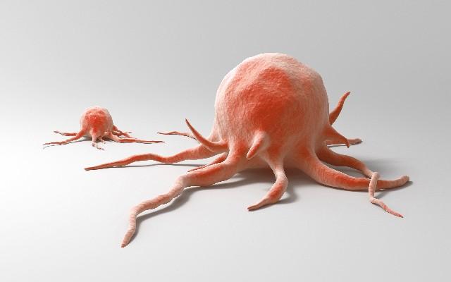 瘜肉變大腸癌 71萬年輕人有風險