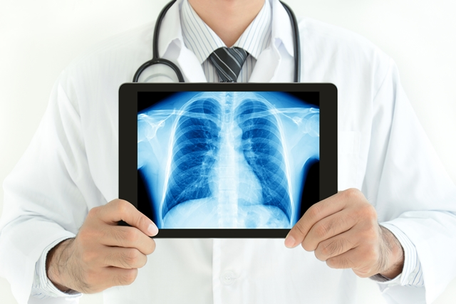 晚期肺癌現生機 第3代標靶藥獲優先審查上市
