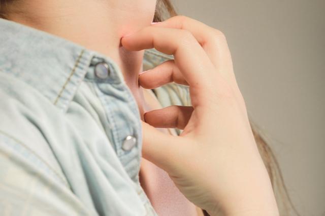蕁麻疹反覆發作怎麼辦?