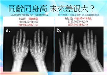 只要一張X光片就可以預測你的身高?