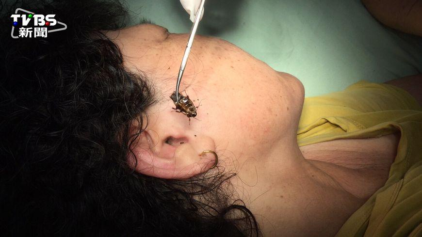 台中一名女士,凌晨發現耳朵中有異物感,就醫檢查發現竟是蟑螂卡在外耳道!(圖/豐原醫院提供,圖非當事蟑螂) 半夜誰入侵? 原來活體蟑螂住在耳朵裡
