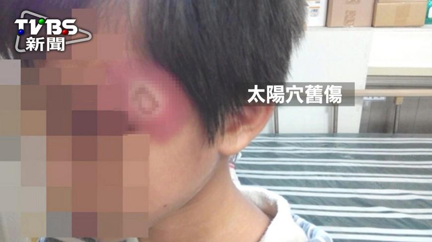 圖/TVBS 只能吃剩菜!男童皮膚紅腫潰爛 疑遭虐待