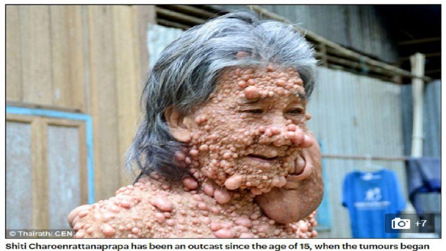 圖/DailyMail 全身被腫瘤覆蓋 男隱居多年出面只為送泰皇最後一程