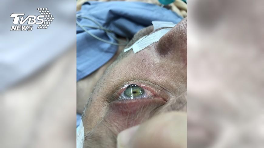 示意圖/TVBS 角膜膨出險失明 移植手術救視力