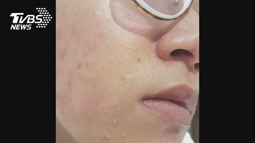圖/TVBS 控護膚員推銷不放人 做臉「脫皮掉屑」