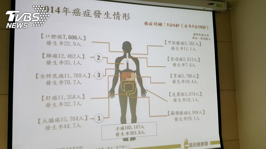圖/中央社 癌症時鐘再撥快 每5分6秒一人罹癌