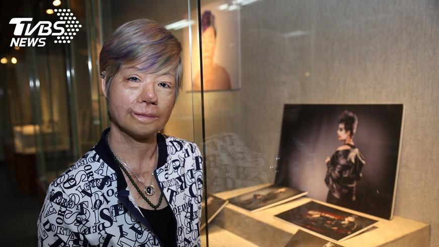 圖/中央社 26年前海霸王大火 她全身60%灼傷浴火重生