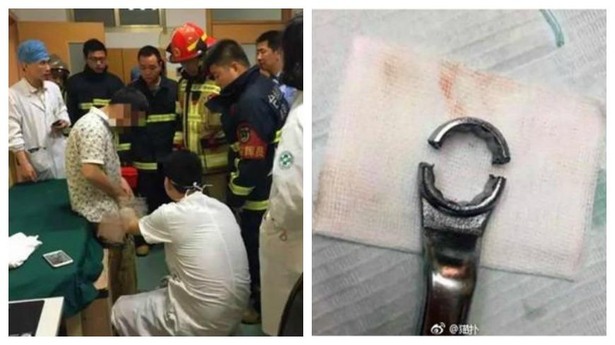 圖/擷取自新浪網、微博 下體遭「板手」卡住17小時 醫院、消防總動員只為救他