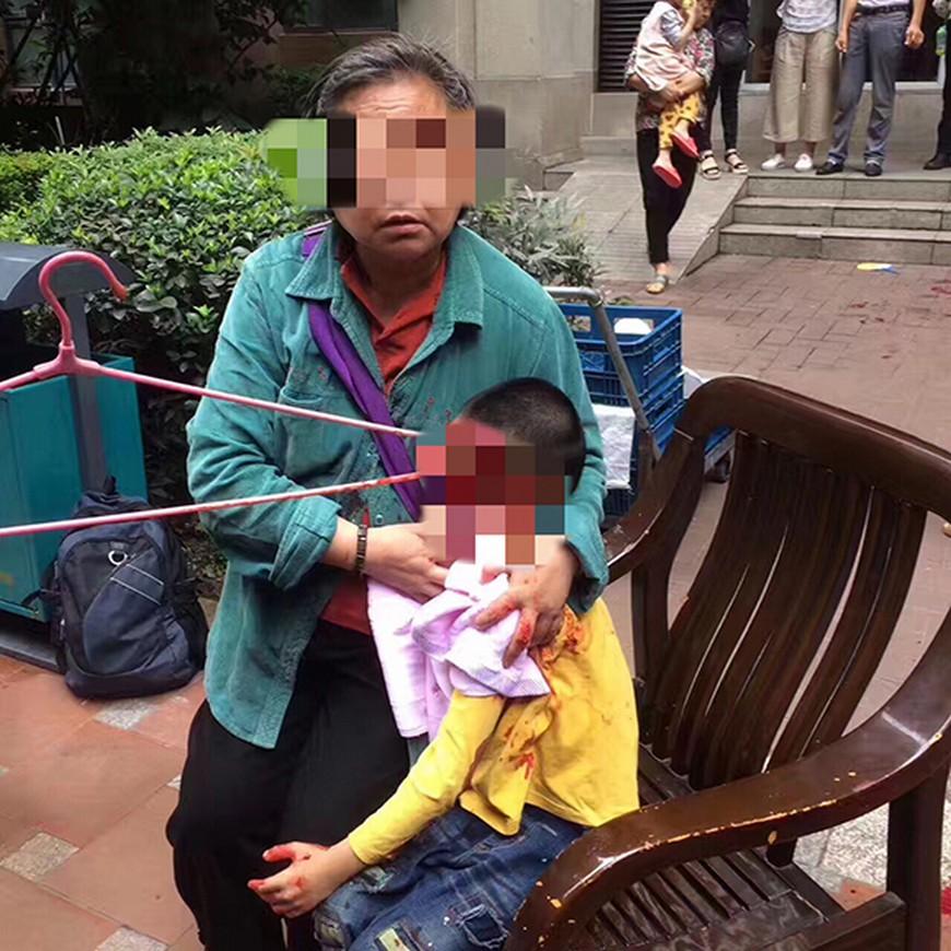 圖/翻攝自《成都全搜索》 陪奶奶社區散步 6歲孫竟遭1公尺長衣架插爆頭