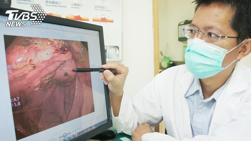 圖/中央社 惡性腫瘤如水龍頭放血 8旬嬤昏倒才發現