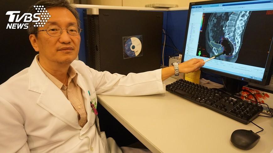 圖/中央社 血便發現原位癌 放射治療後切除保肛門