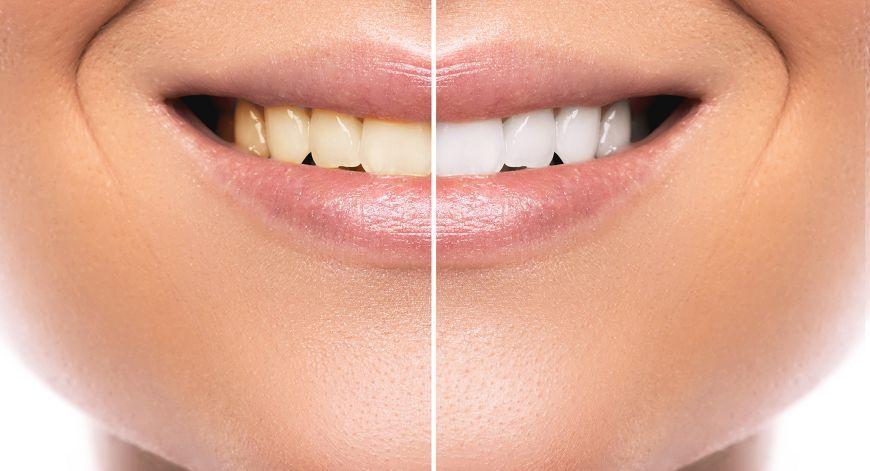 圖/TVBS 嘴巴呼吸牙齒就變黃?! 4種習慣維持牙齒亮白