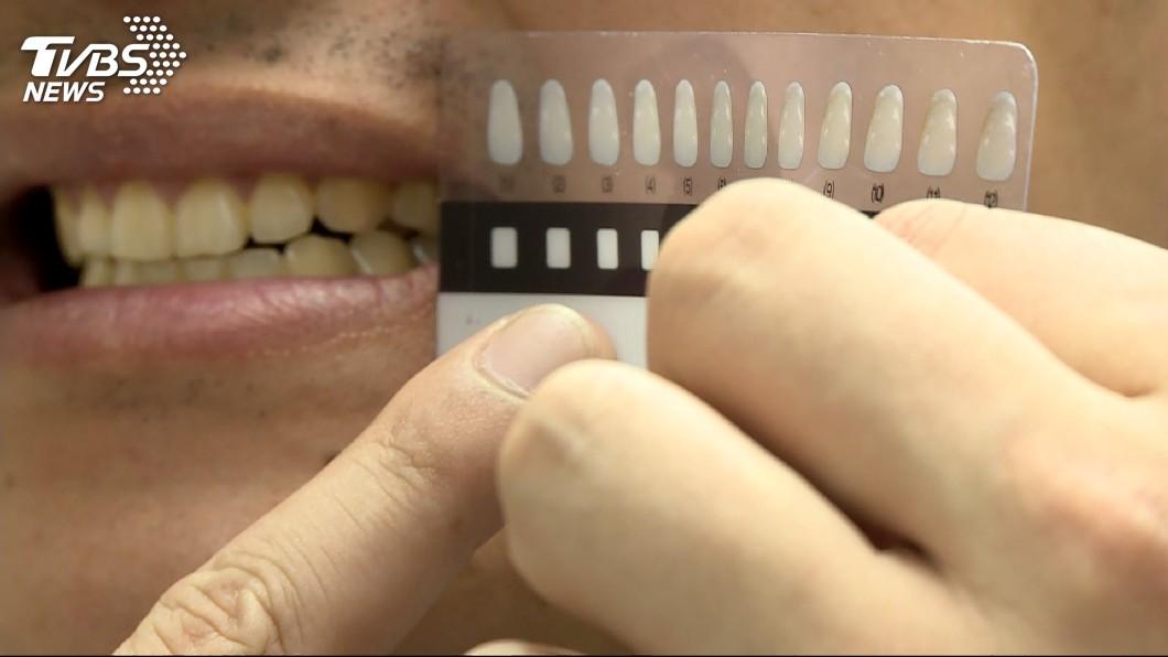 圖/TVBS 白牙貼片夯! 醫:若「酸鹼超標」恐傷琺瑯質