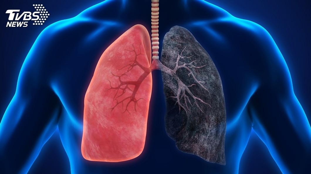 示意圖/TVBS 國衛院開發抗肺癌新藥 最快5年內上市