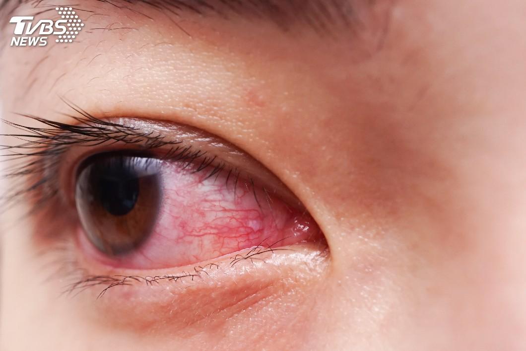 示意圖/TVBS 沙塵暴襲台釀褐爆!醫:眼睛癢可別亂點「眼藥水」