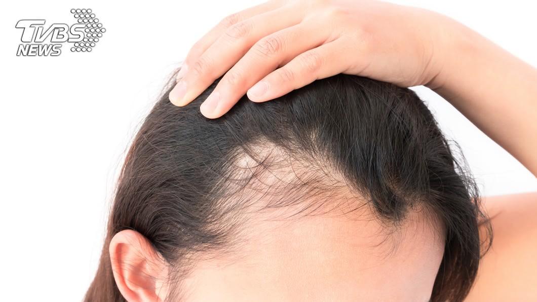 示意圖/TVBS 快訊/台大教授花6年研究 注射Wnt3a蛋白防掉髮