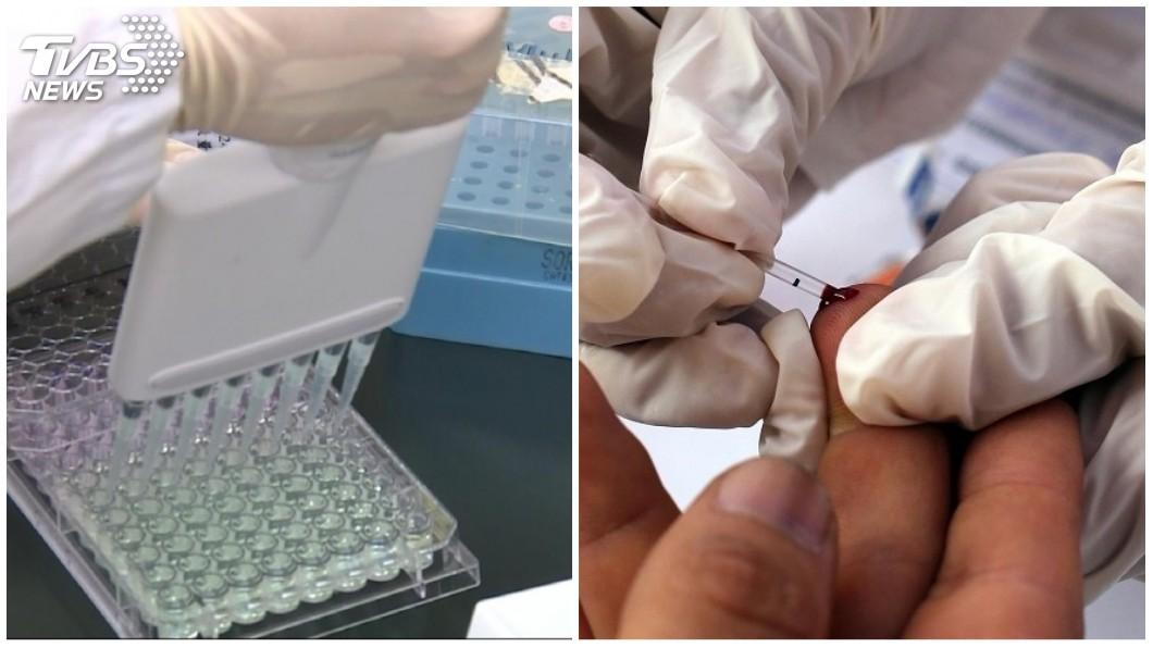 圖/TVBS(左)、達志影像路透社(右) 行政院提案擬修法 愛滋病「患者可相互器官捐贈」