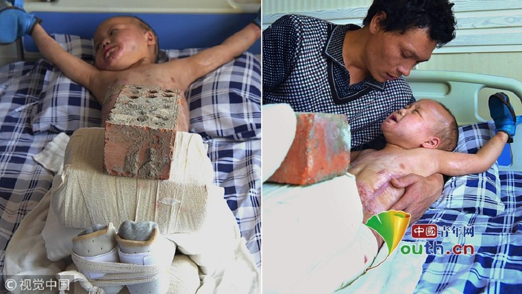 大陸一名男童被火燒傷,父親每天用15公斤重的磚塊壓住他腿幫做復健。(圖/翻攝自中國青年網) 有洋蔥!5歲童全身燒傷 父忍淚拿15公斤磚頭壓腿復健