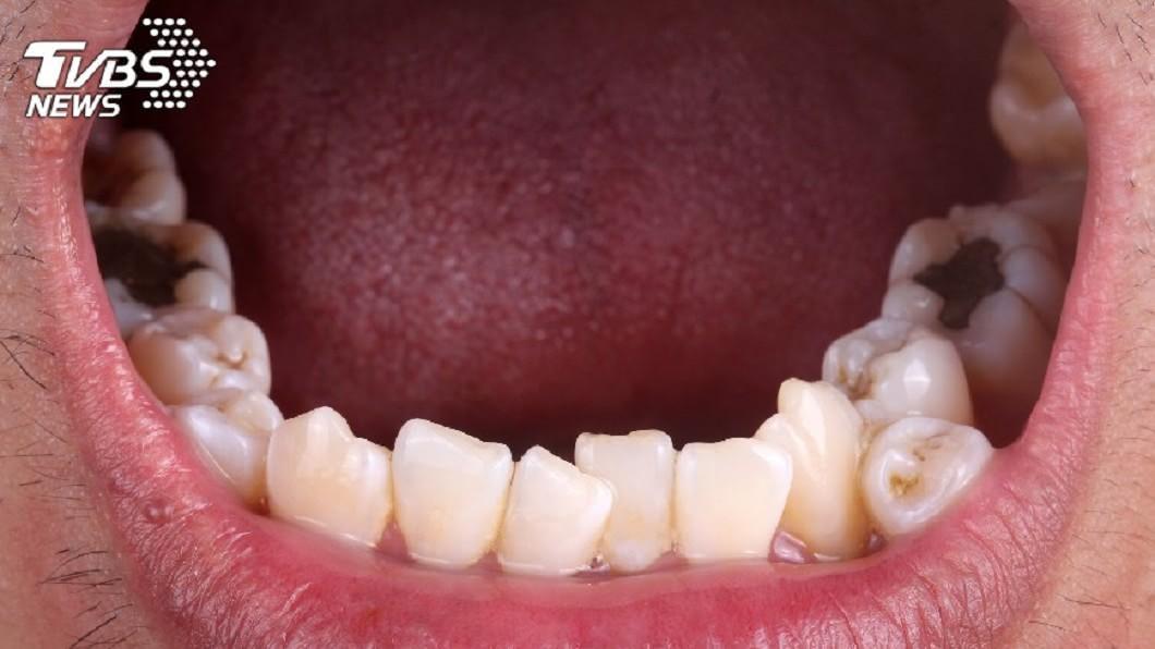 示意圖,與本文無關。圖/TVBS 男嘴巴臭爆!一開口「白黴菌爬滿嘴+食道」 嚇傻醫生
