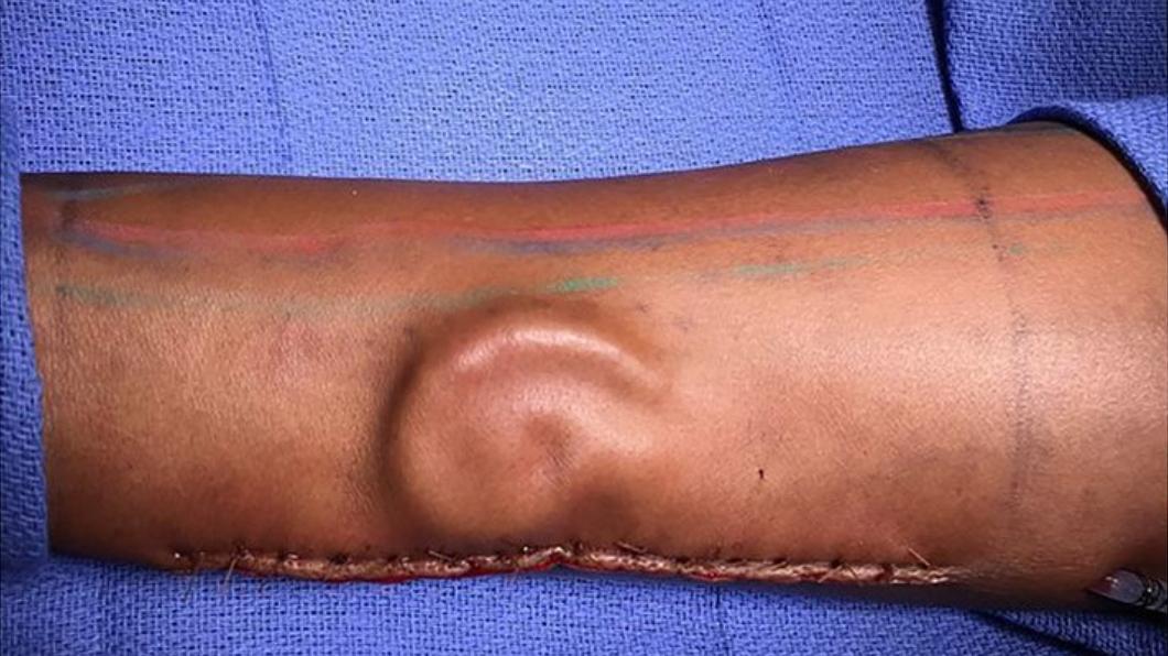 翻攝自/Twitter 手臂「長出」新鮮耳朵?女兵車禍失聰 醫師幫她種回來