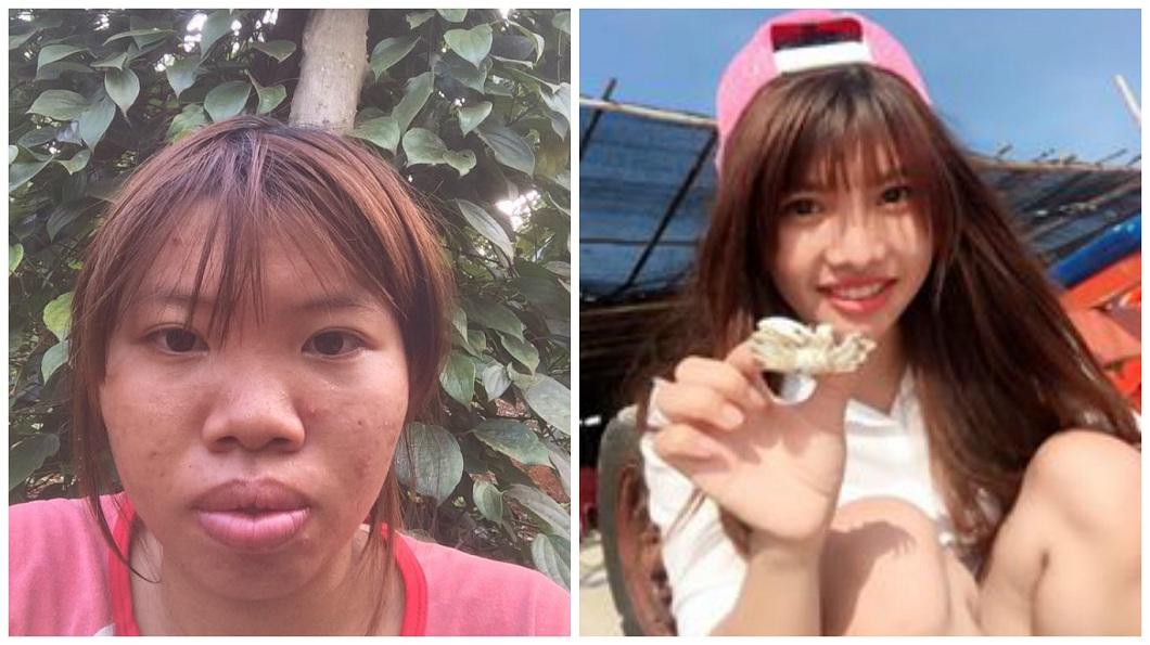 越南一名女子原本其貌不揚,之後花大錢整形成美女。(圖/翻攝自臉書) 砸42萬整形變正妹 嫁富二代5月被劈腿離婚