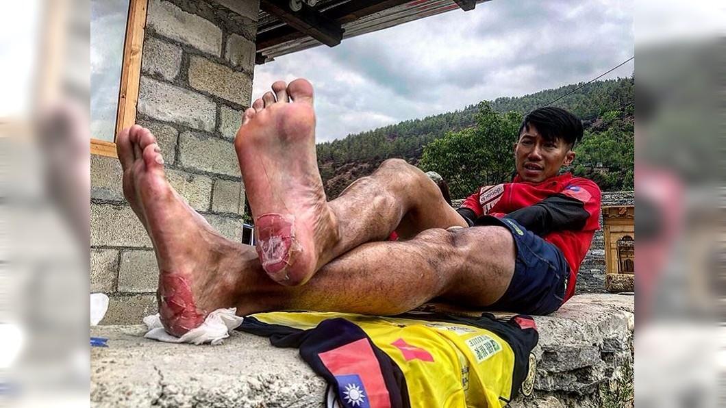 圖/翻攝自陳彥博臉書 腳跟破皮墊腳尖跑 陳彥博不丹奪冠