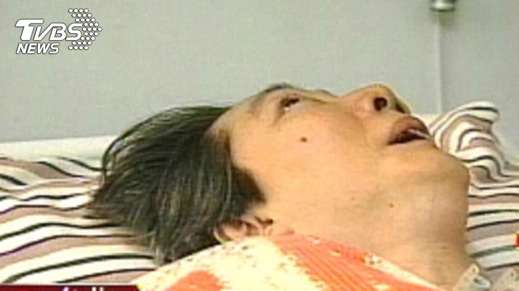 圖/TVBS資料照 一躺就47年!台灣史上第一起請求安樂死案例