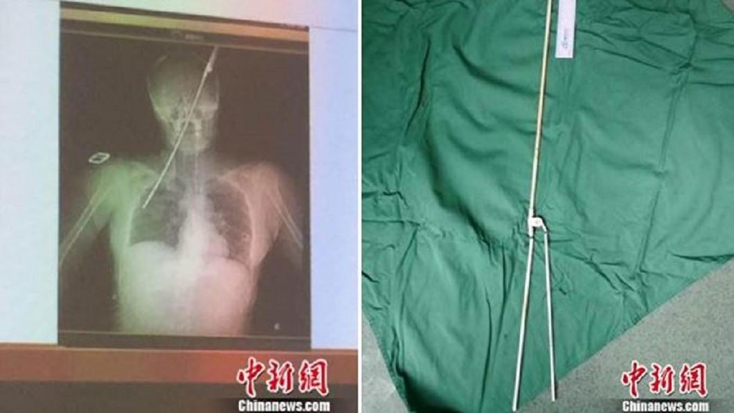 圖/翻攝自《中新網》 怪風吹襲!40cm傘骨直插女左眼 貫穿鼻腔「頂到肺」