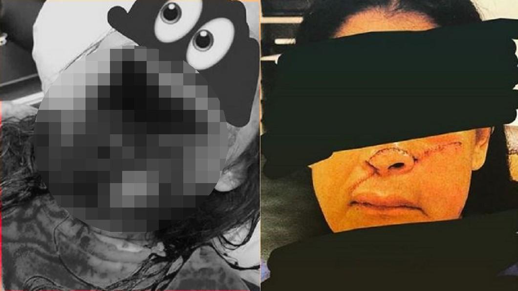 圖/翻攝自微博,畫面經變色處理 鼻下被削去!淡定姐「扶半張臉」就醫 驚悚照逼網求打碼