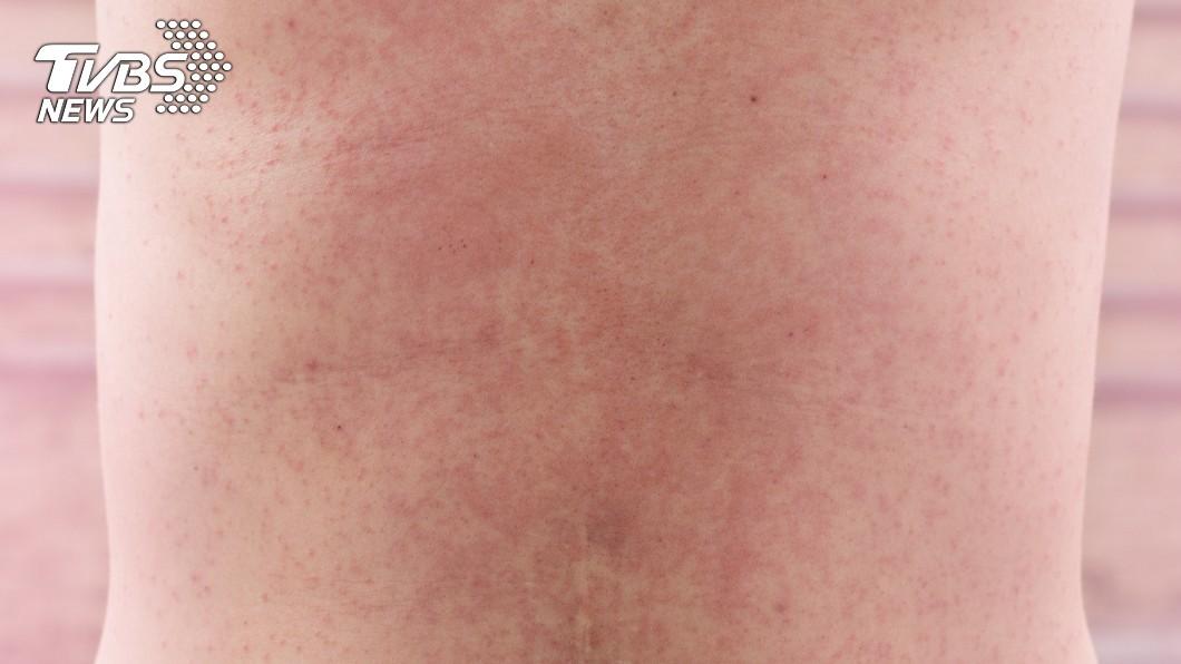 京都同仁堂 天氣悶熱汗水在皮膚上累積,導致汗腺發炎。