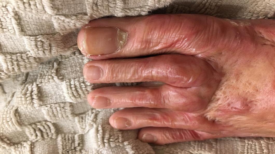 出院的蒂蒂,開始面對整腳的變形、發燙。圖/蒂蒂提供 八仙塵爆三周年》堅韌女孩蒂蒂:出院才是痛苦的開始