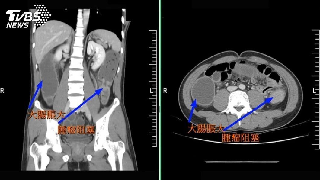 圖/中央社 大腸癌年輕化! 28歲男不菸酒重養生也罹病