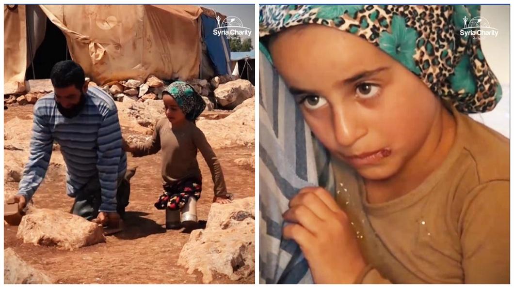 敘利亞一名8歲女童和父親一樣,天生就沒有雙腿。(圖/合成圖,翻攝自臉書粉絲團) 暖!敘利亞女童用罐頭走路 好心醫師幫裝義肢