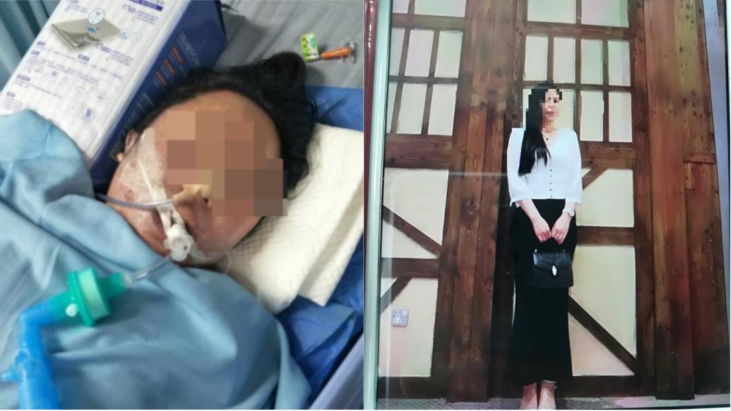 圖/翻攝自深圳晚報 一天做3項整形手術 6天後輕熟女身亡