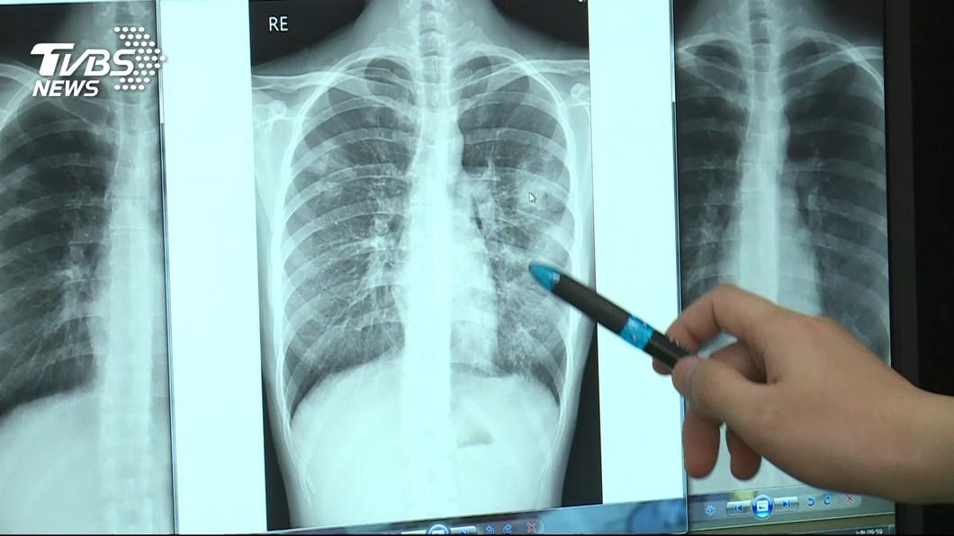 病患肺部發炎有可能以腹痛方式表現。(示意圖,與本文當事人無關/TVBS) 兒喊肚痛掛急診…父嫌醫不專業狠踹 2天後確診「肺淹一半」