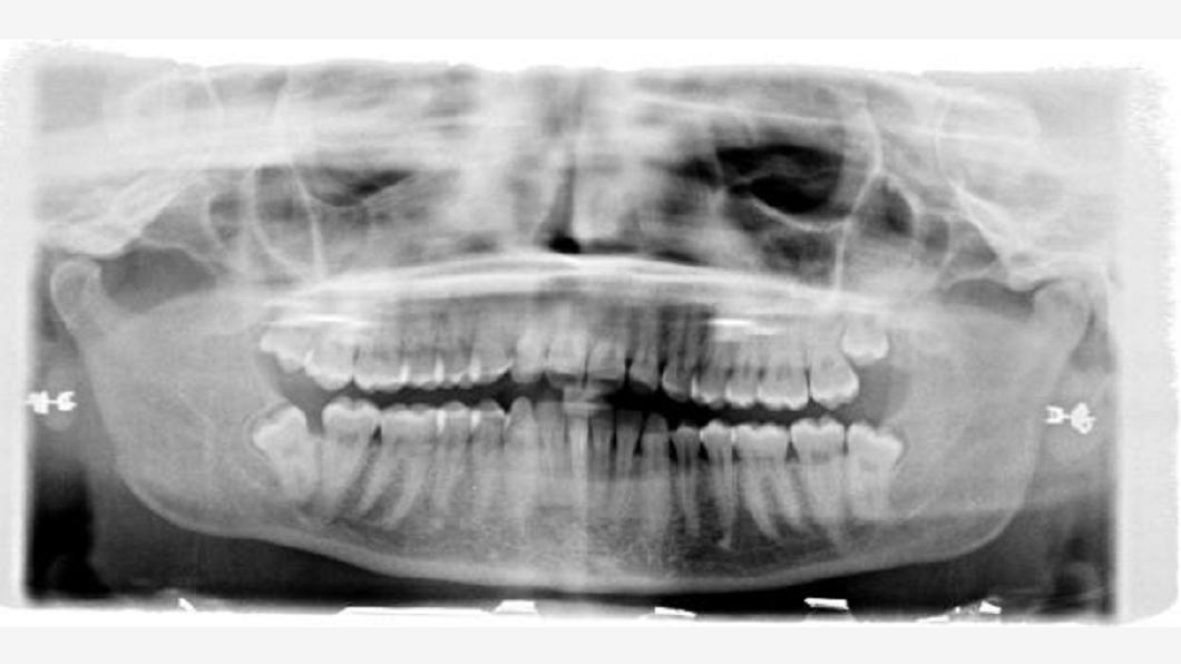 圖/翻攝自《Guardian》 慘!智齒拔一半牙醫滑倒 女臉頰破7公分大洞毀容