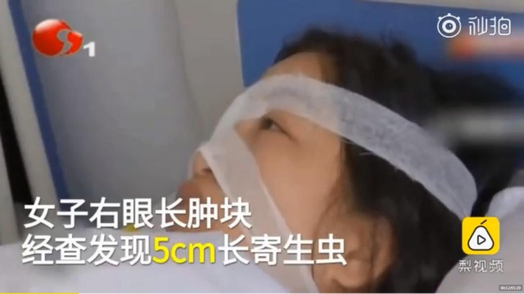 圖/翻攝自秒拍 女愛吃野味「右眼長腫塊」 手術拉出5公分蠕動活蟲