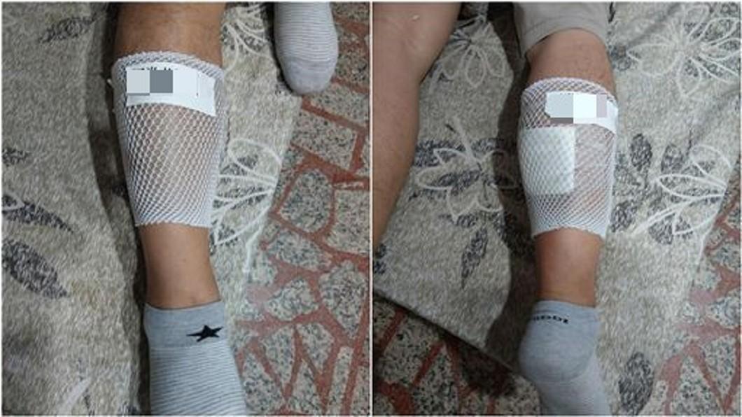 圖/翻攝臉書 騎士燙傷被「關心到崩潰」 傷口貼這張讓他們秒閉嘴