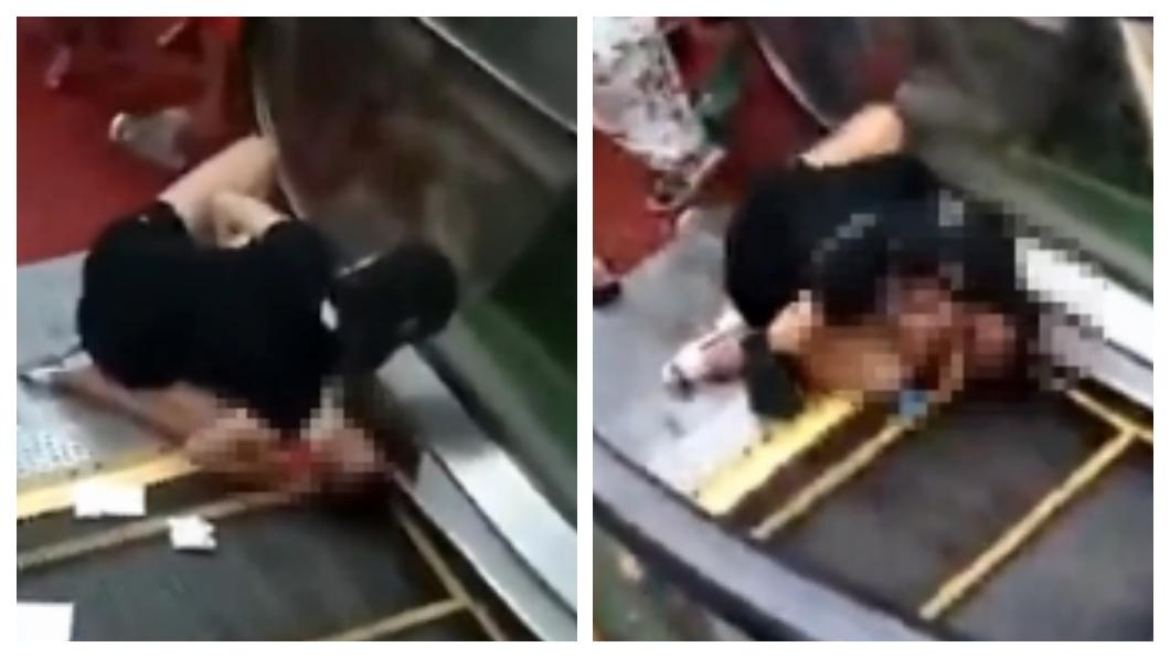 圖/翻攝自《看看新聞》 1歲童遭手扶梯「生吞」 手臂絞斷僅剩一層皮相連…