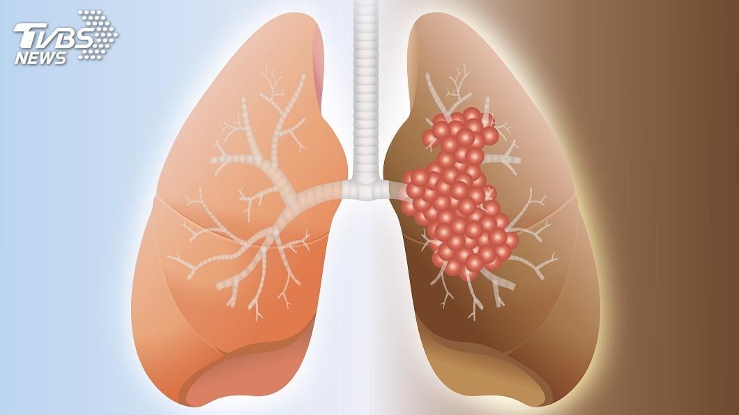 京都同仁堂 PM2.5害不吸菸者罹肺癌? 衛福部出面說真相