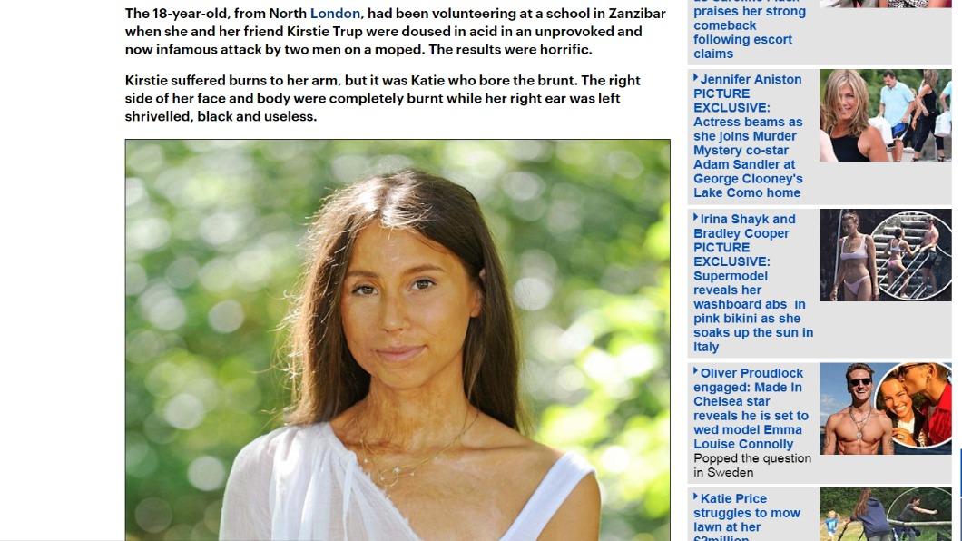 圖/翻攝自DailyMail 遭潑酸毀容「5年動70次手術」 少女康復超勵志